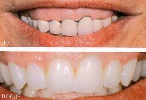 зубное протезирование керамикой