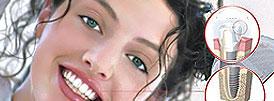 стоматологические импланты