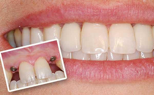 Саратов зубные импланты