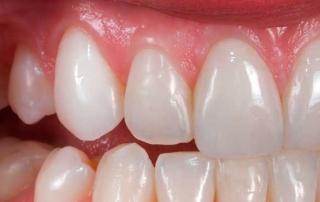 Зубные коронки из циркония