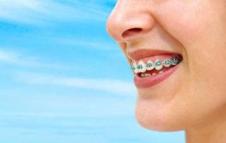 Прайс цены на ортодонтию