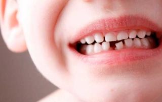 _ortodontia-prikus-2