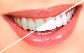 отбеливание зубов во Владивостоке