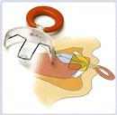 Вестибулярная пластинка с бусинкой